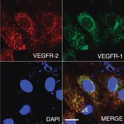 Microscopy showing a representative image of VEGFR-1 co-localized with VEGFR-2